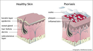 Skincare advice if you have psoriasis…