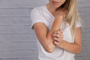 does-eczema-hold-you-back