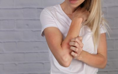 Does eczema hold you back?